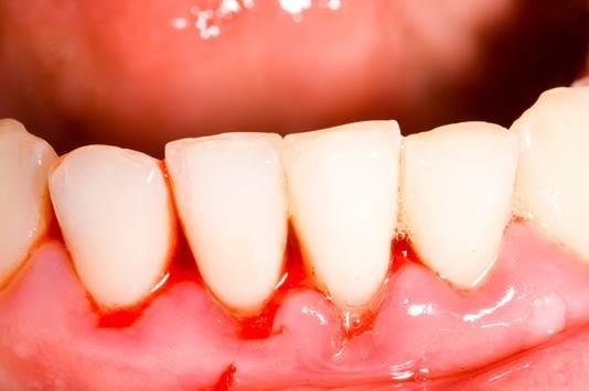 Billede af tandkoedsbetaendelse
